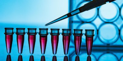 The advantages of prospective collection for modern biobanks